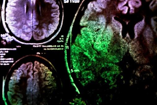 Inpatient Psychiatry