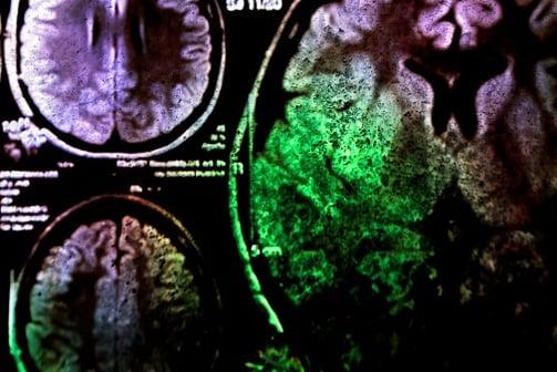Neurologist Jobs