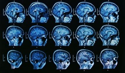 Neurology Physician Assistant
