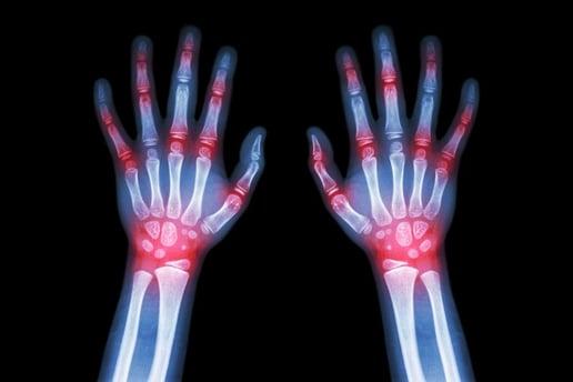 Rheumatology, Advanced Practice Nurse Jobs